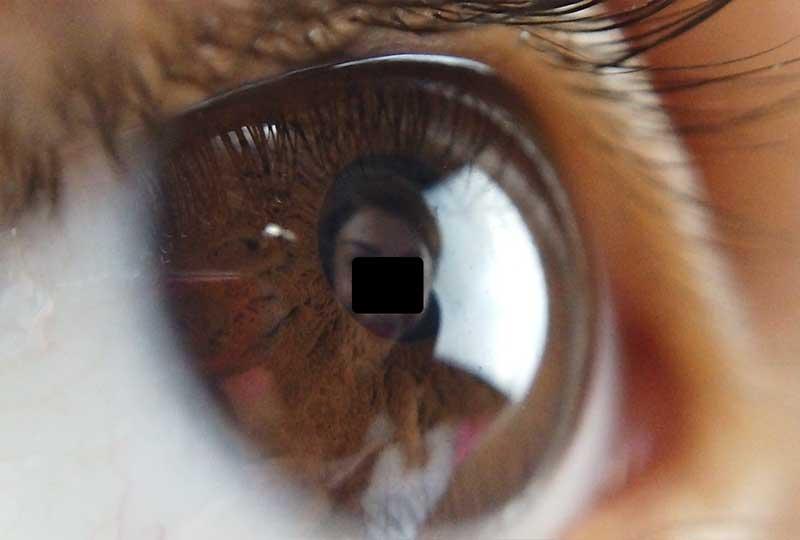 نمونه تصویر لنز ماکرو